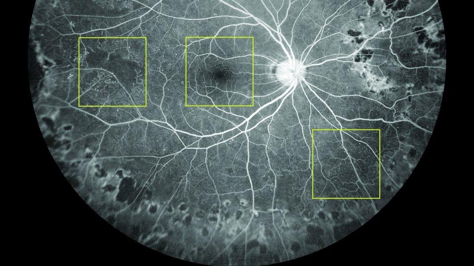 Cévy sítnice lidského oka zobrazené s pomocí krevního barviva fluoresceinu