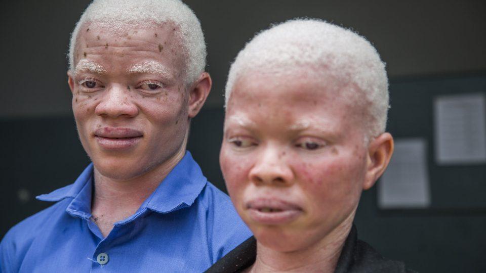 Bílá nosí smrt. Dokument o osudu albínů v africké Ghaně