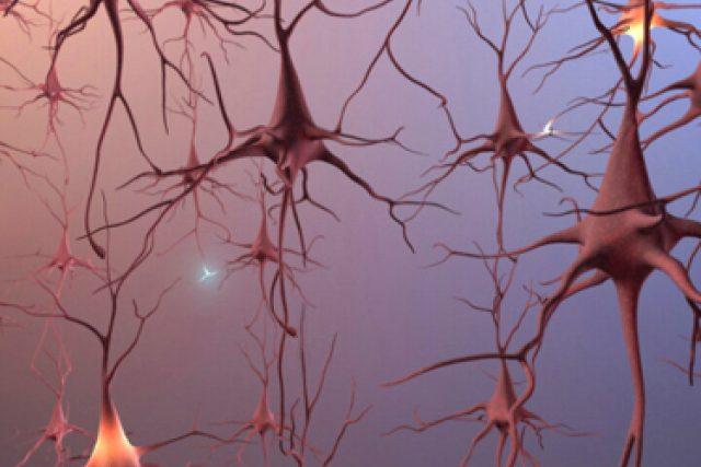 Mozkové neurony | foto:  Ústřední vojenská nemocnice