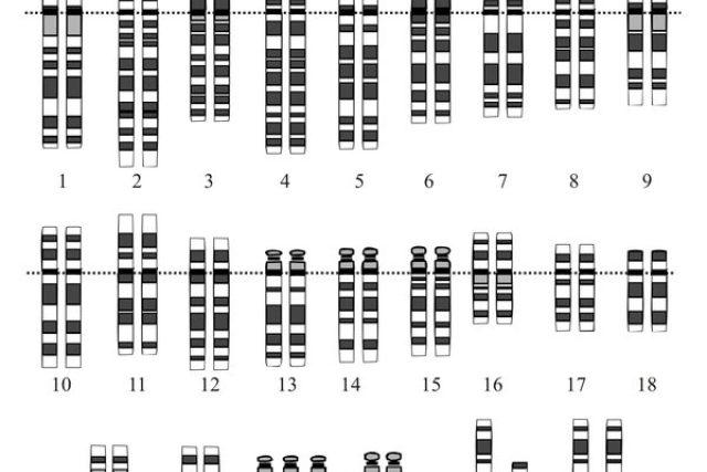 Downův syndrom vyvolává přítomnost třetí kopie 21. chromozómu | foto:  NHGRI,  licence Public Domain  (eng)