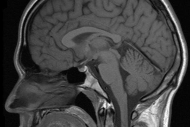 Magnetická rezonance hlavy člověka