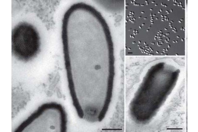 Pithovirus sibericum - snímek z elektronového mikroskopu