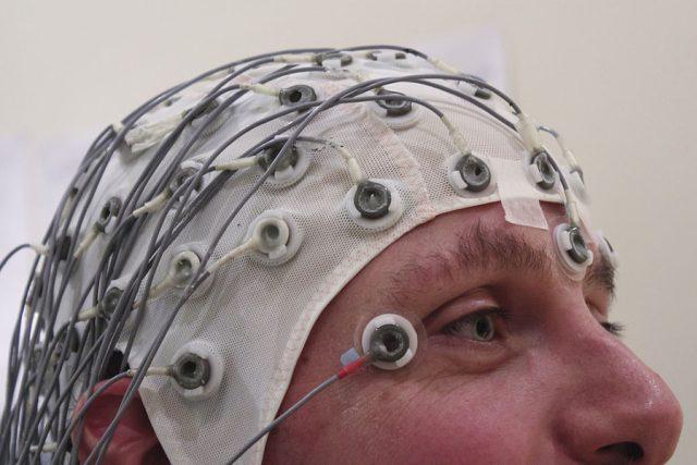 epilepsie - EEG