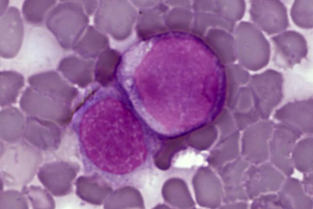 Leukemické buňky v nátěru z periferní krve