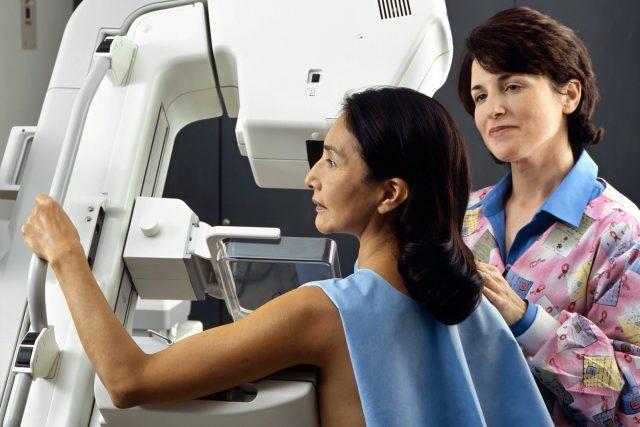 Preventivní screeningová mamografie
