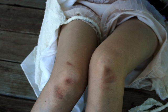 Znásilnění – zbitá žena – sexuální násilí – zneužívání