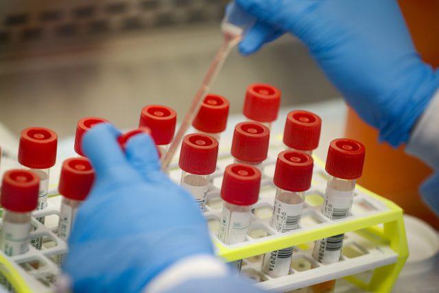 Testování na koronavirus | foto: John Minchillo,  ČTK/AP