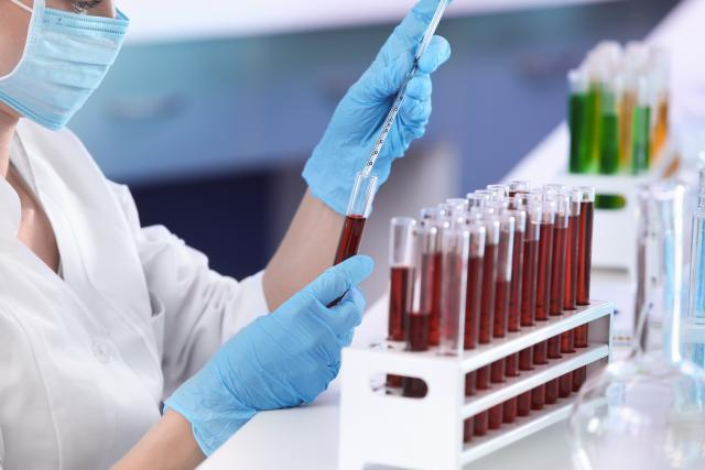 Laboratorní testy už dlouho pomáhají lékařům vyznat se v původcích nakažlivých onemocnění.