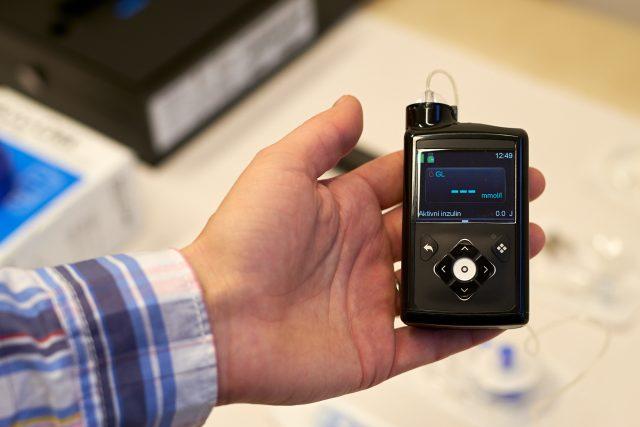 Inzulínová pumpa už dnes umí žehlit nepřesnosti, říká vedoucí Diabetologického centra