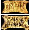 Zdravá kost (nahoře) a kost postižená osteoporózou (dole)